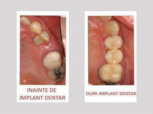 implant dentar inainte si dupa
